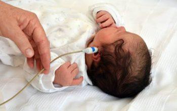 Doğumsal İşitme Kaybı İçin Risk Faktörleri Nelerdir?